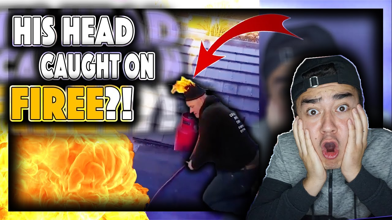 HIS HEAD CAUGHT ON FIRE?!