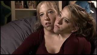 Abigail & Brittany Hensel  The Twins Who Share a Body