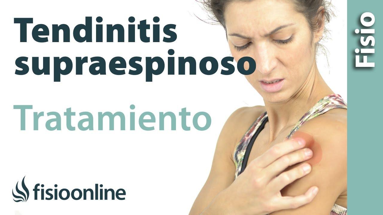 Tendinitis del supraespinoso - Tratamiento con ejercicios ... 19345abf1a05