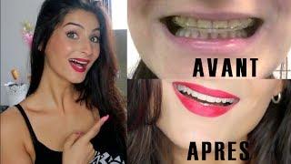 Lufy- Mon traitement orthodontique: AVANT/APRES, PRIX, DOULEURS, DUREE