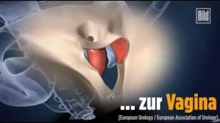 Repeat youtube video Mann-zu-Frau Operation erklärt
