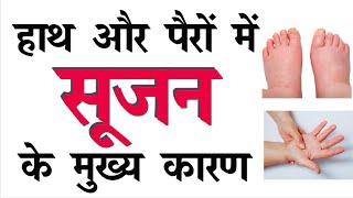 हाथ और पैरों में सूजन के मुख्य कारण   Hand and Feet Swelling in Hindi   Legs pain and swelling cure