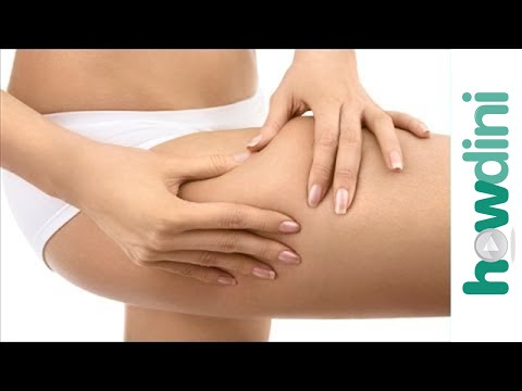 What is cellulite and how does it form?