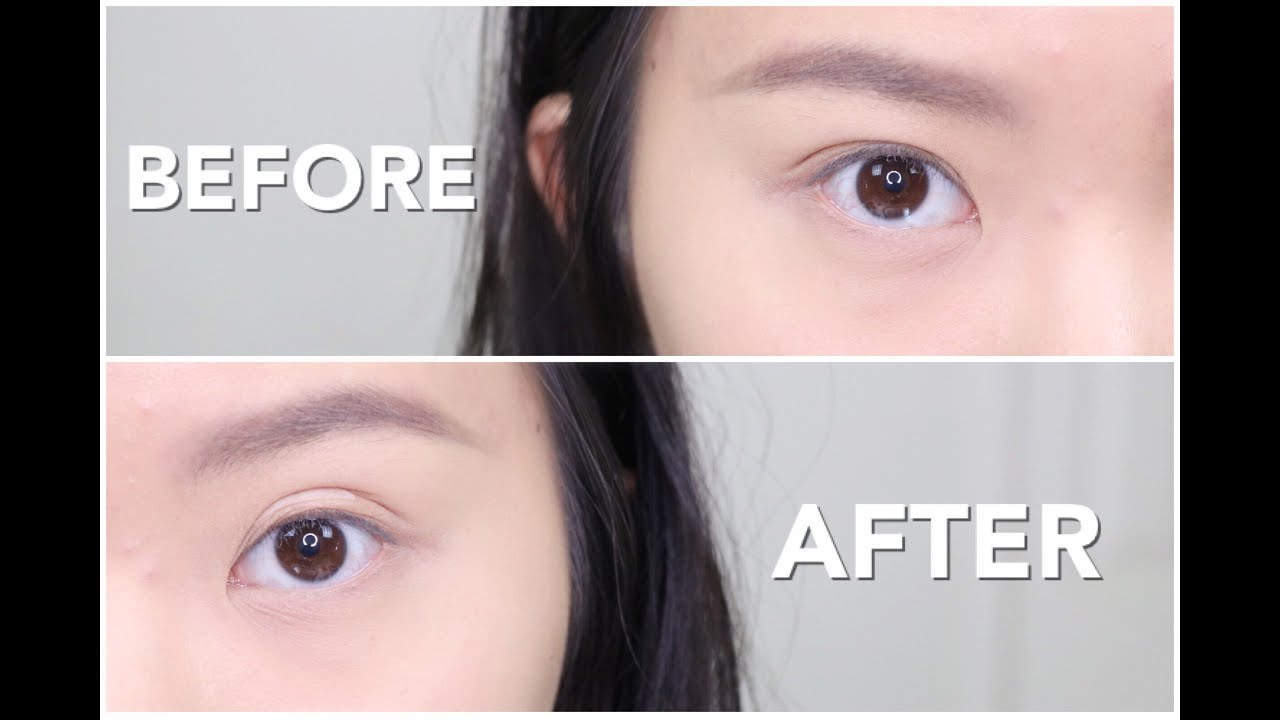 How to even double eyelids naturally how i trained my eyelids youtube
