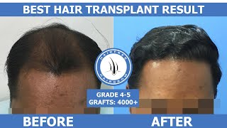 Amazing FUE Hair Transplant Results - 9 Months || Natural Hair Line || Best Hair Transplant Results