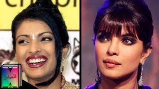 10 ممثلات هنديات بوليوود خضعن لعمليات التجميل