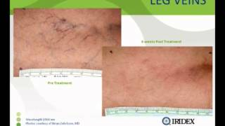 Vein Removal at Zenith Cosmetic Clinics Thumbnail