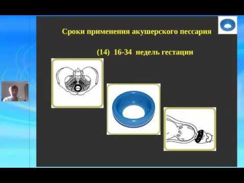 Черная Н. Е. Акушерский пессарий Доктора Арабин