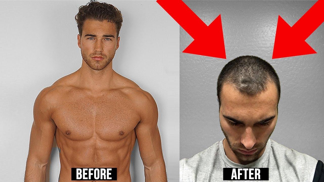 Why I Regret Shaving My Head Youtube
