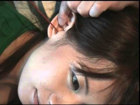 "Japanese protruding ears woman ""Tomoko"" ear cleaning"