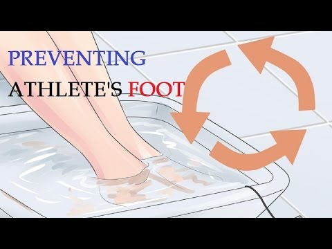 How to Treat and Prevent Athlete's Foot | bPreventing Athlete's Foot