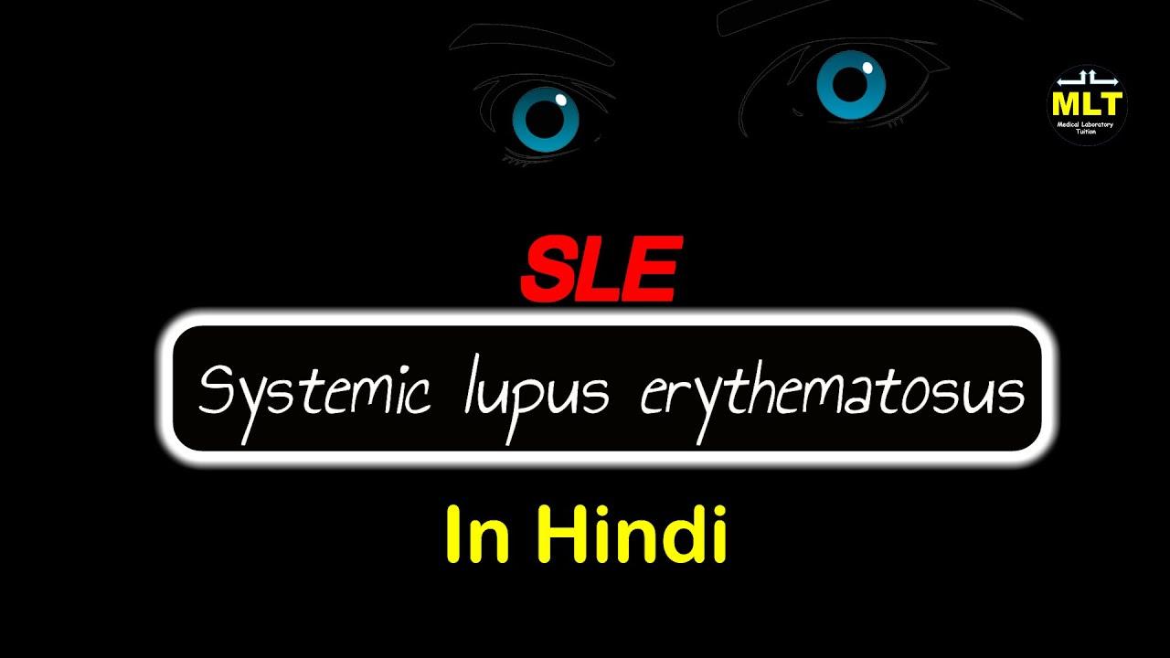 a lupus nem tud fogyni