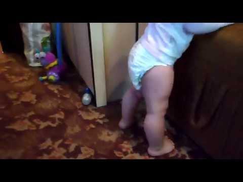 Вальгусные стопы, кривые ножки? Ребенку год, ходит сама
