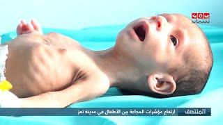 ارتفاع مؤشرات المجاعة بين الأطفال في مدينة تعز