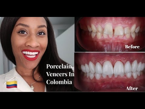 i-got-my-dream-smile!-porcelain-veneers-in-colombia-|-price,-my-doctor,-hotel-&-flight-info