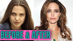 Angelina Jolie: Plastic (Cosmetic) Surgery (2020)