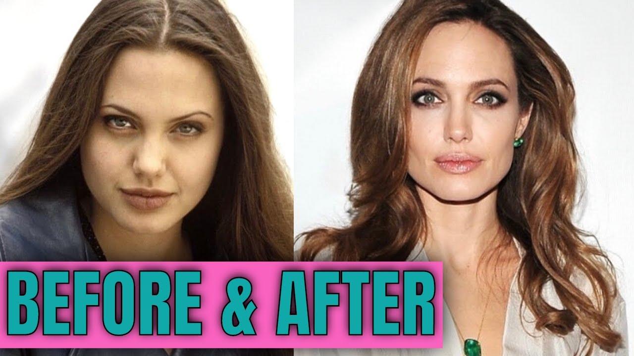 Angelina Jolie Operation