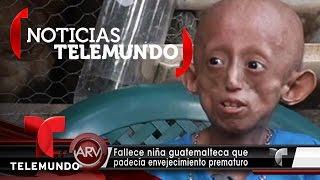 Fallece niña que padecía de envejecimiento prematuro | Al Rojo Vivo | Noticias Telemundo YouTube Videos