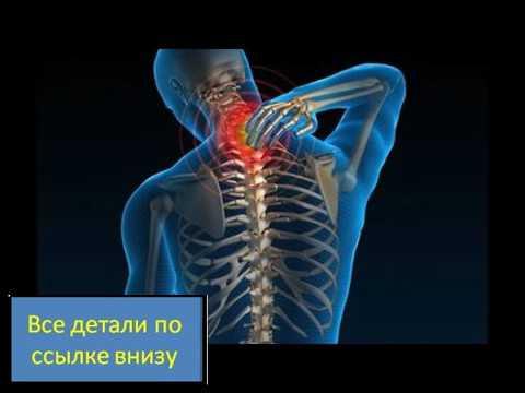 Медикаментозное лечение остеохондроза: обзор средств