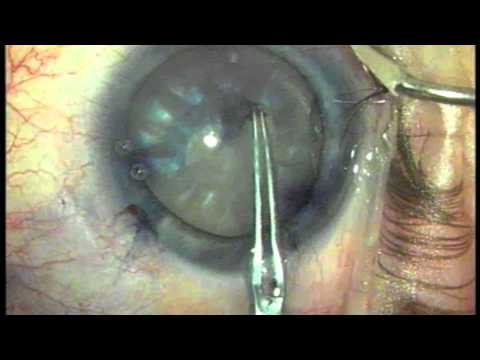 Ravi Goel MD - Mature White Cataract Surgery with Vision ...