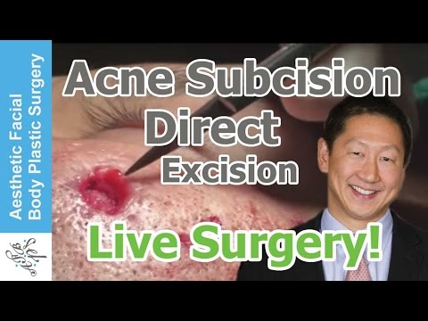LIve Surgery: Acne Scar Treatment Using Direct Excision ...