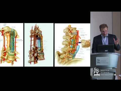Surgical Treatment for Metastatic Disease by Laurence Rhines, MD