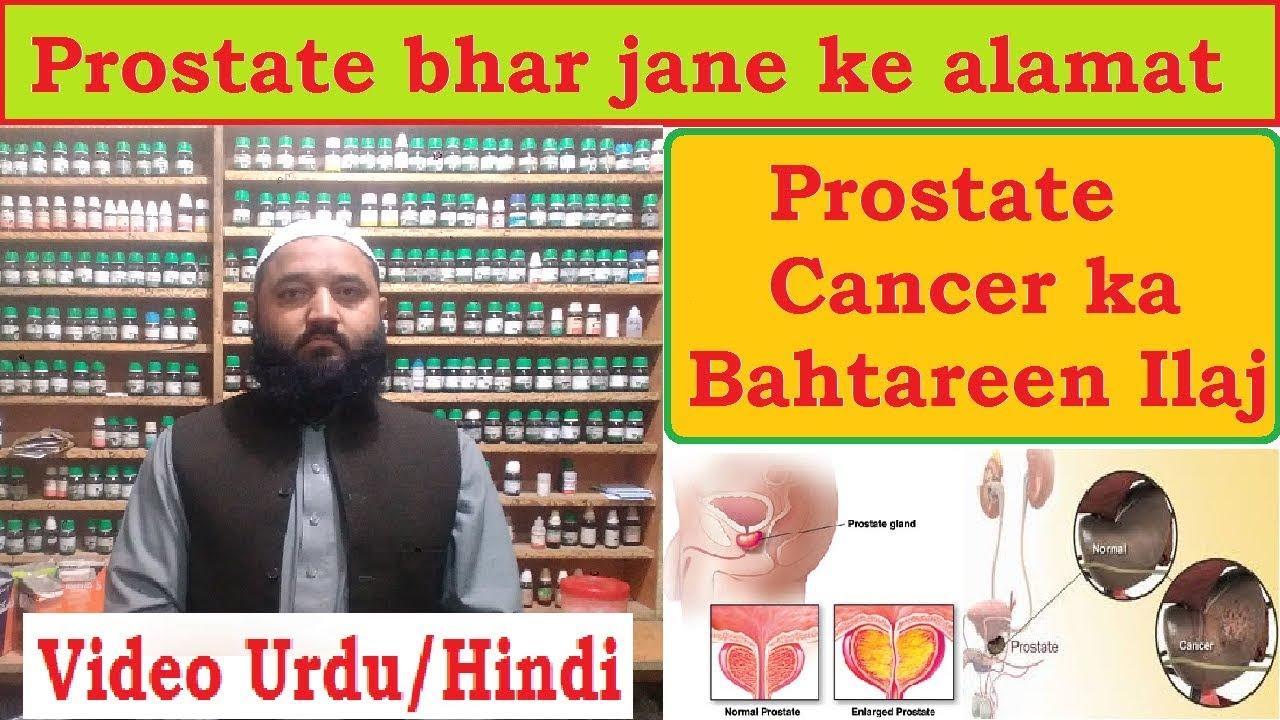 prostate ka desi ilaj in urdu