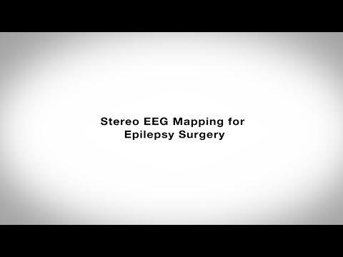 Stereo EEG Mapping for Epilepsy Surgery