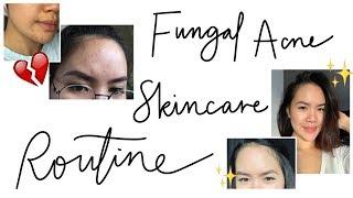 MALASSEZIA FOLLICULITIS/FUNGAL ACNE (Tiny Forehead Bumps) - Skincare Routine | Part Two