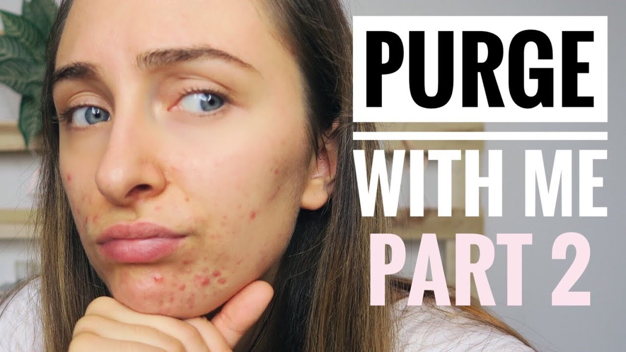 Salicylic Acid Purge WEEK BY WEEK | BREAKING OUT!!