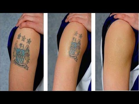 Tattoo Removal Houston Tattoo Removal Houston Tx Eraser Clinic