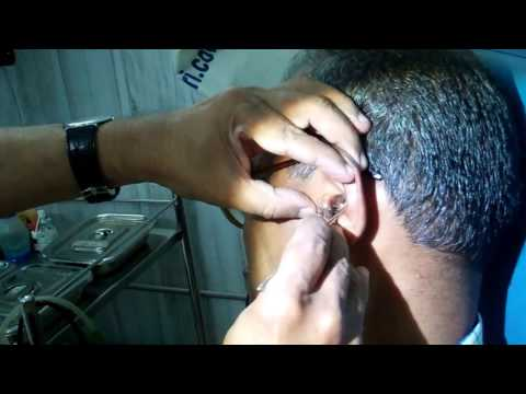 Huge Amount Of Ear Wax Removed - Dr Paulose FRCS (ENT)