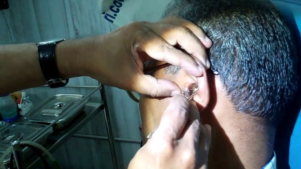Download Huge Amount Of Ear Wax Removed - Dr Paulose FRCS (ENT)
