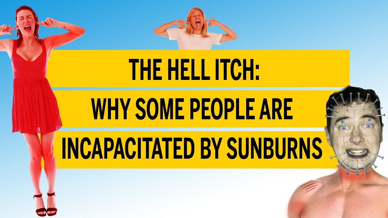 The Hell Itch is real — and it's the worst kind of sunburn