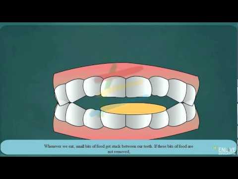 Download Dental caries
