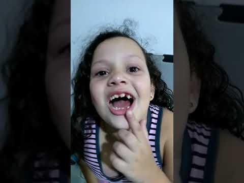 Yasmim S.Mirandola Tirou O Dentinho