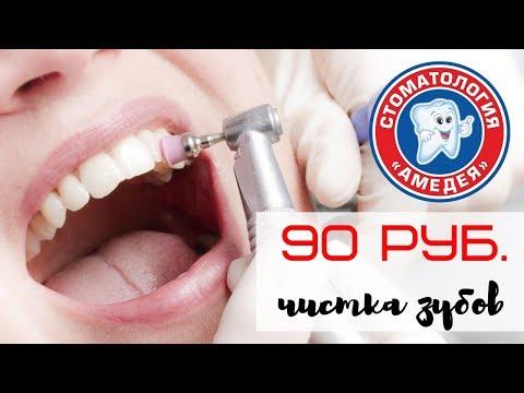 """Профессиональная чистка зубов за 90 руб. в """"Амедея"""""""