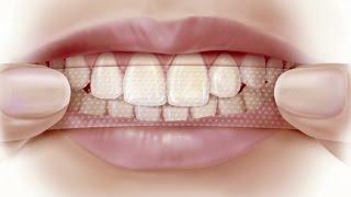 Инструкция! Как пользоваться отбеливающими полосками Crest 3D White?(http://crestwhite.by - магазин средств для домашнего отбеливания зубов в Минске. +375 (29) 777-55-85 В данном видео расскажем..., 2016-08-04T22:34:54.000Z)