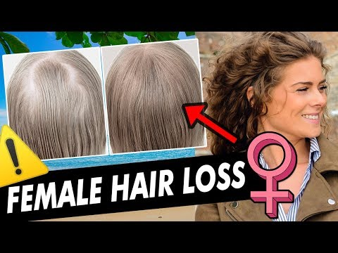 how-to-stop-hair-thinning-in-women:-female-pattern-hair-loss-treatment,-alopecia,-balding,-pcos-cure