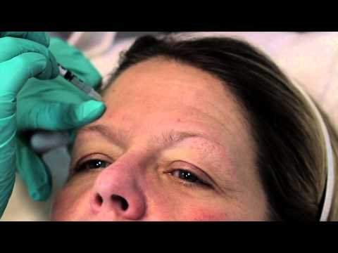 Botox - Glabella & Forehead Botox Injections