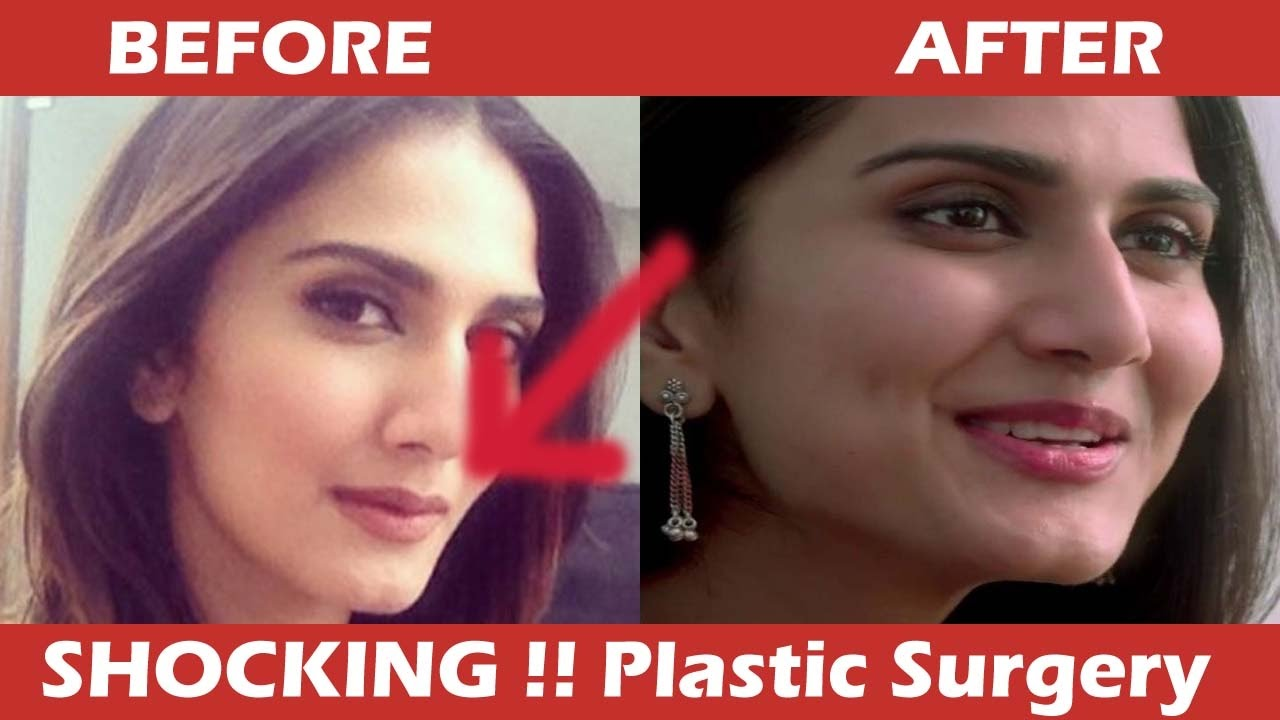 vaani kapoor plastic surgery gone wrong - shocking !!! - youtube