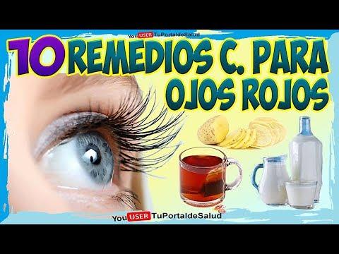 OJOS ROJOS 10 remedios caseros para eliminar los ojos ...