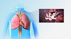 Pulmonary Rehabilitation | Nucleus Health