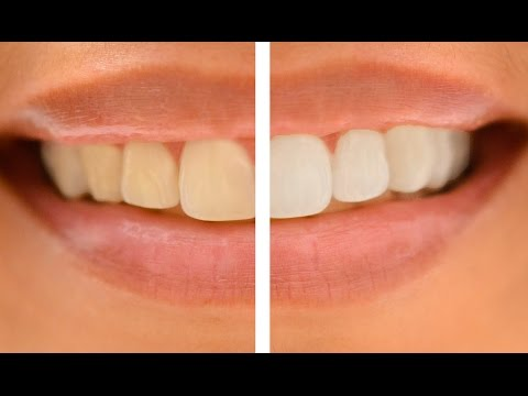 How to Whiten Teeth in Photoshop! TWO STEPS!!