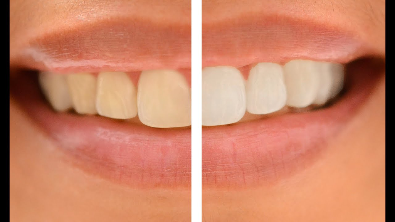 How To Whiten Teeth In Photoshop Two Steps Youtube