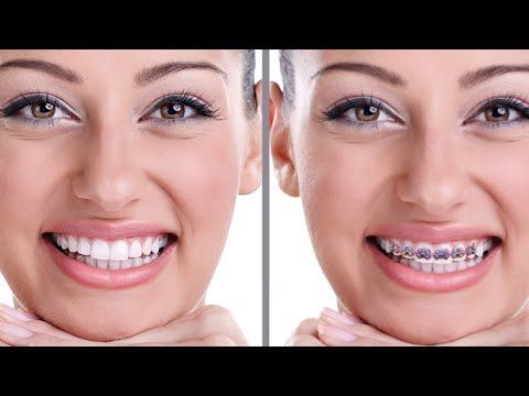 Como Colocar Aparelho Nos Dentes Com O Simulador Ios Brace Face