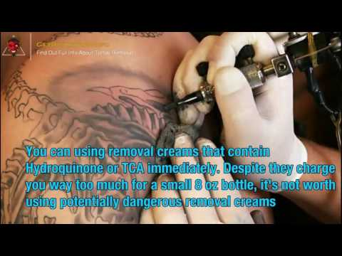 How Much Does It Cost To Remove Tattoos Everything You Must To Learn About Tattoo Removi