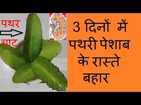 kidney stone treatment in hindi for 3 day ||Home Remedies || 3 दिनों में  पथरी पेशाब के रास्ते बहार