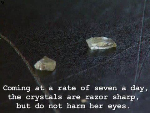 Crystals coming out from eyes
