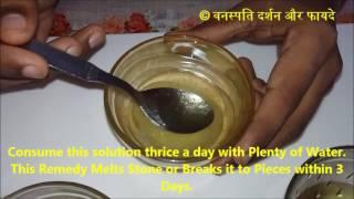 3 दिन में करे पथरी के टुकड़े टुकड़े Teen Dinon mein Kare Pathri ke Tukde - 2 With English Subtitle